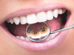 Güzel gülüşlerin sırrı koruyucu ortodonti olabilir!